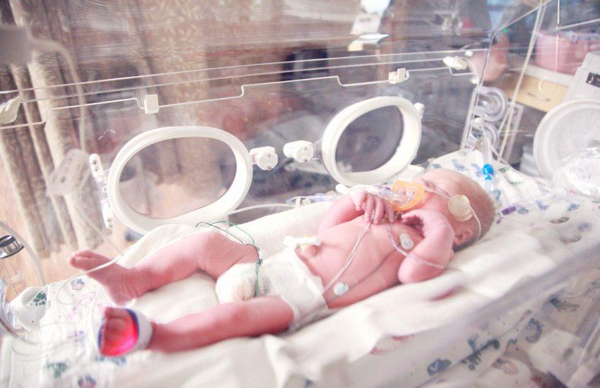 cara merawat bayi prematur