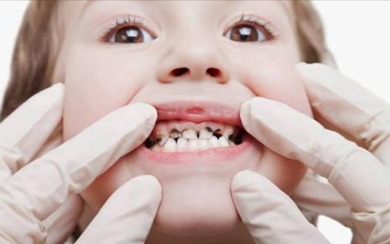 cara merawat gigi anak yang terlanjur gigis